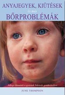 THOMPSON, JUNE - Anyajegyek, kiütések és más bőrproblémák [antikvár]