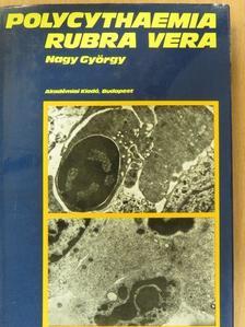 Nagy György - Polycythaemia rubra vera klinikuma, pathologiája és korszerű kezelése [antikvár]