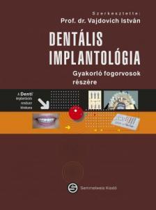 Vajdovich István - Dentális implantológia - Gyakorló fogorvosok részére