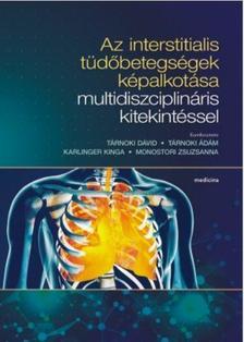 Tárnoki D.-Tárnolki Á.-Karlinger K-Monostori Zs. - Az interstitialis tüdőbetegségek képalkotása multidiszciplináris kitekintéssel